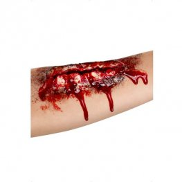Open Wound Flesh Scar